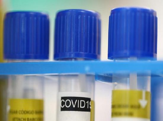 Coronavirus deaths in France cross 10,000