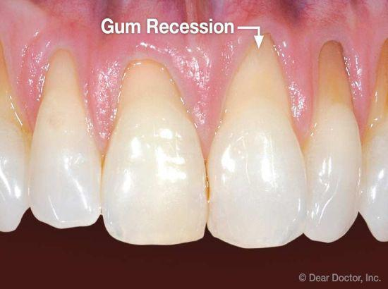 Gums recession? Have some tips on causes and treatment